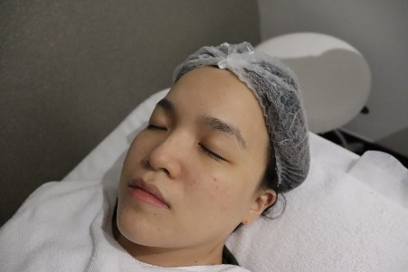 [ Deenise ] I've tried the 'coldest' facial at IDS Aesthetics