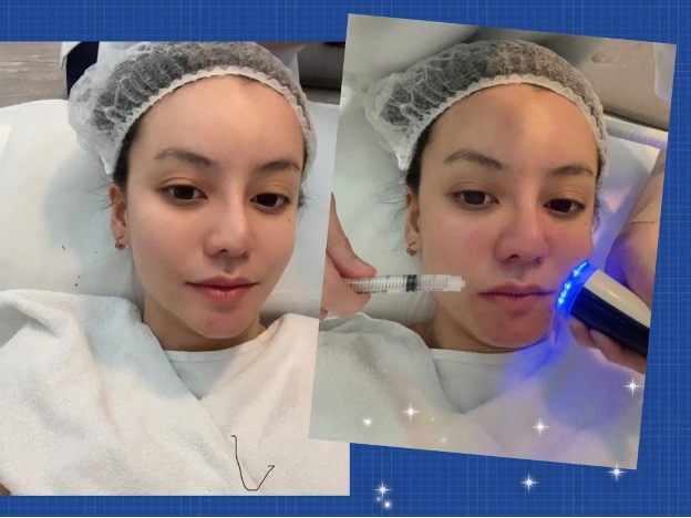 [ Sally ] Review: My IDS Journey – Second Consultation and Cryo Facial with IDS Aesthetics