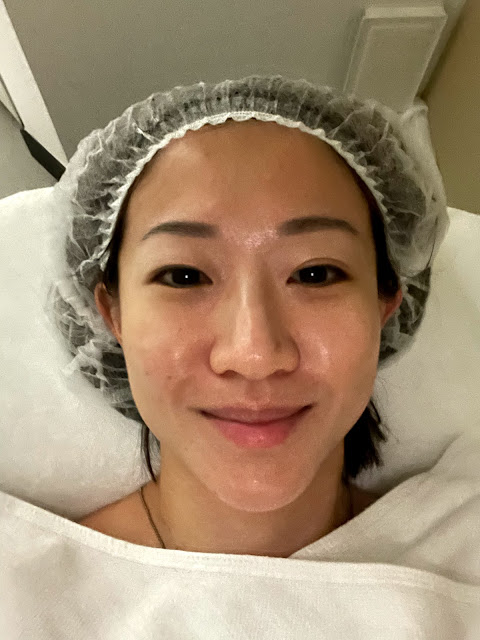[ Ms Skinnyfat ] Restarting my skincare regime - IDS Skincare Part 2